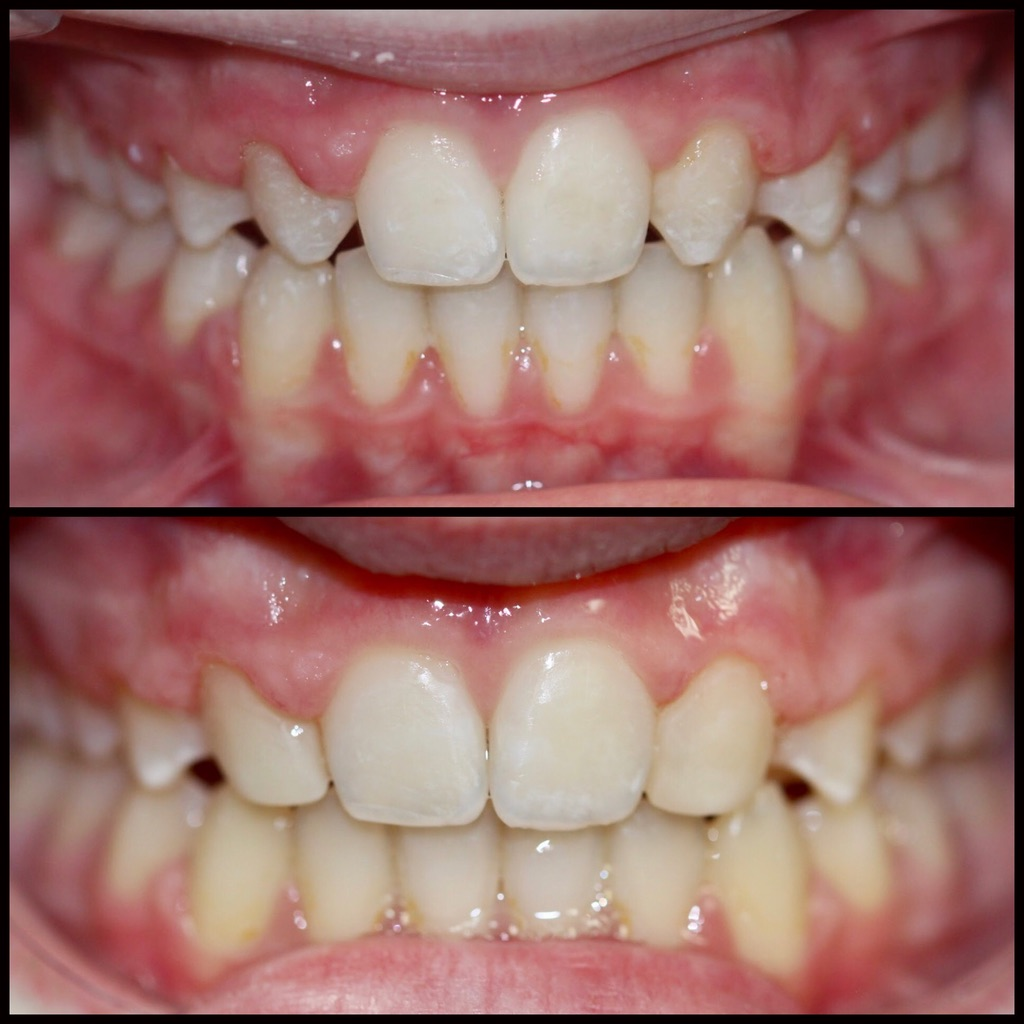 Composite 2 Before and After